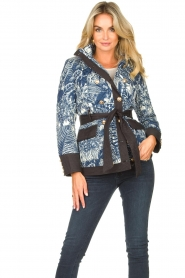 Silvian Heach |  Kimono jacket with golden marine buttons Gulch | blue  | Picture 2